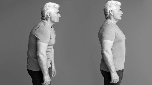Poor Posture Solution in Fulham
